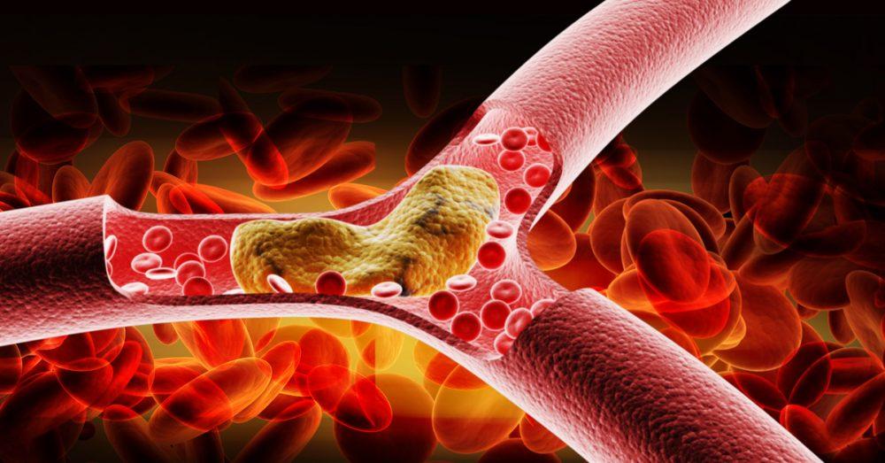Giảm béo và phòng trị bệnh tim mạch hiệu quả với Chiết Xuất Sen Tươi